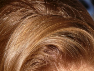 Hairs2